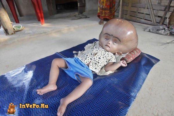 Рону Бегум. Тогда ей было 1,5 года. Девочка страдает от гидроцефалии