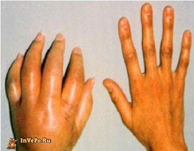 Синдром Зудека