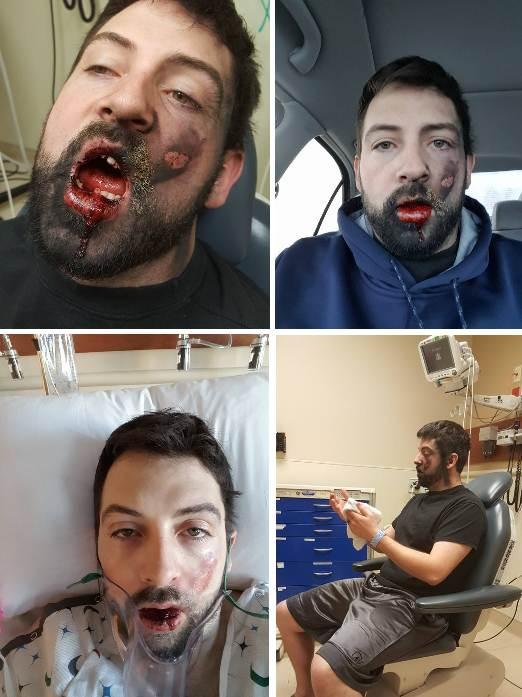 Он тут же потерял 7 зубов- закурив электронную сигарету