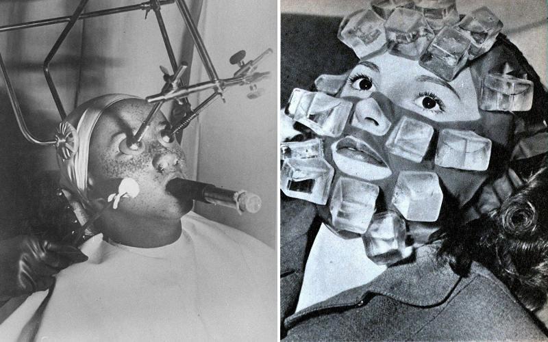 Косметические процедуры прошлого века (15 фото)