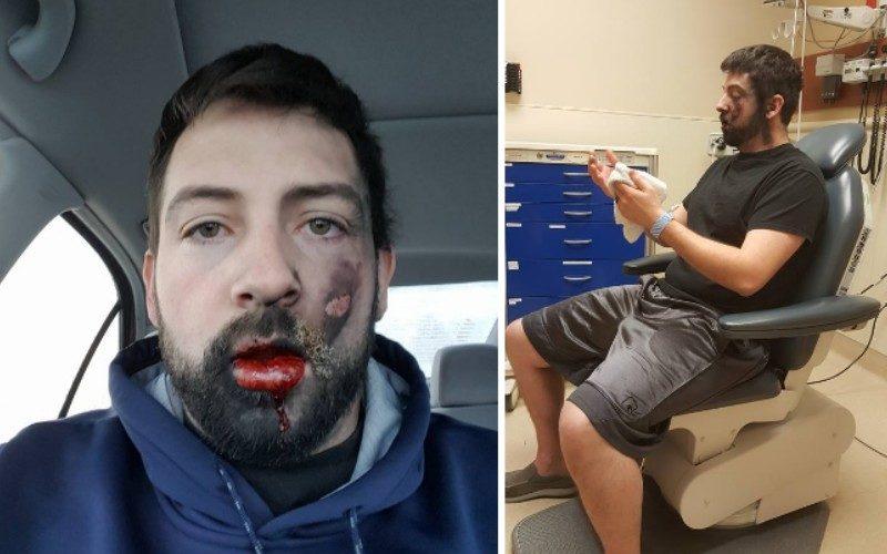 Он тут же потерял 7 зубов - закурив электронную сигарету